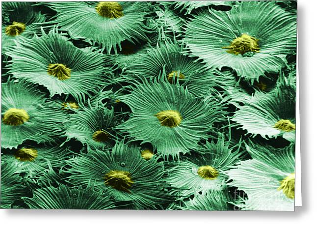 Scanning Electron Micrograph Greeting Cards - Russian Silverberry Leaf  Greeting Card by Asa Thoresen and Photo Researchers