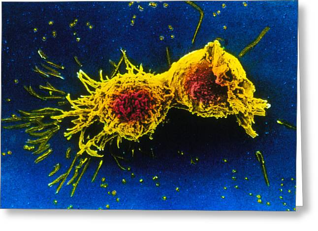 Mitosis Greeting Cards - Scanning Electron Micrograph Of Cell Division Greeting Card by Cnri