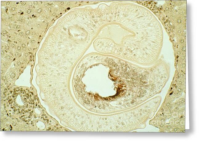 Pathology Greeting Cards - Schistosoma Mansoni Greeting Card by M. I. Walker