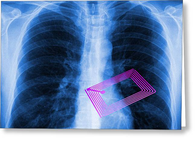 Transceiver Greeting Cards - Security Chip In A Human Chest Greeting Card by Pasieka