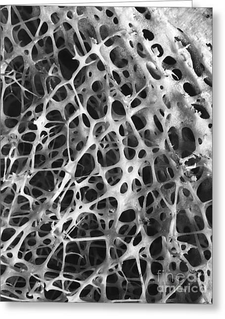 Shin Bone Greeting Cards - Sem Of Human Shin Bone Greeting Card by Science Source