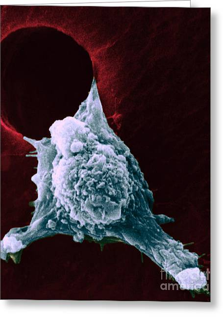 Motility Greeting Cards - Sem Of Metastasis Greeting Card by Science Source