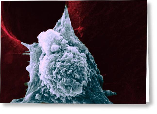 Sem Of Metastasis Greeting Card by Science Source
