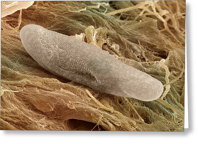 Protozoan Greeting Cards - Sem Of Paramecium Greeting Card by Power And Syred