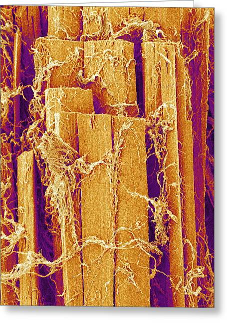 Scanning Electron Micrograph Greeting Cards - Skeletal Muscle Fibre Greeting Card by Susumu Nishinaga