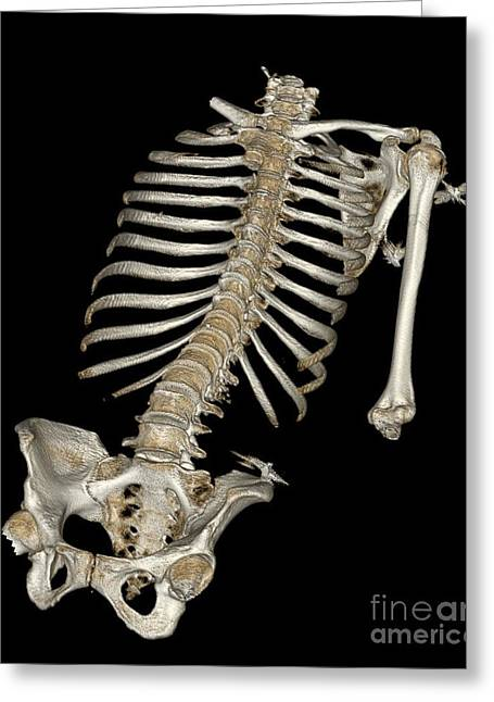 21st Greeting Cards - Skeletal Reconstruction Greeting Card by Science Source
