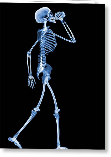 Soda Can Greeting Cards - Skeleton Drinking, X-ray Greeting Card by D. Roberts