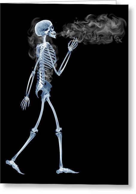 Carcinogenic Greeting Cards - Skeleton Smoking Greeting Card by D. Roberts