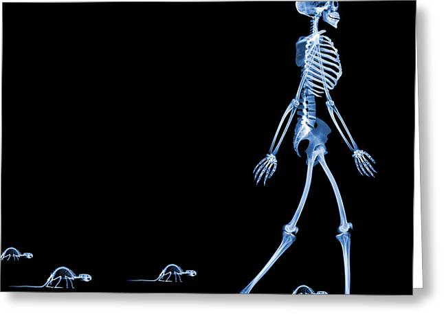 Wildlife Imagery Greeting Cards - Skeletons Of A Human And Rats, X-ray Greeting Card by D. Roberts