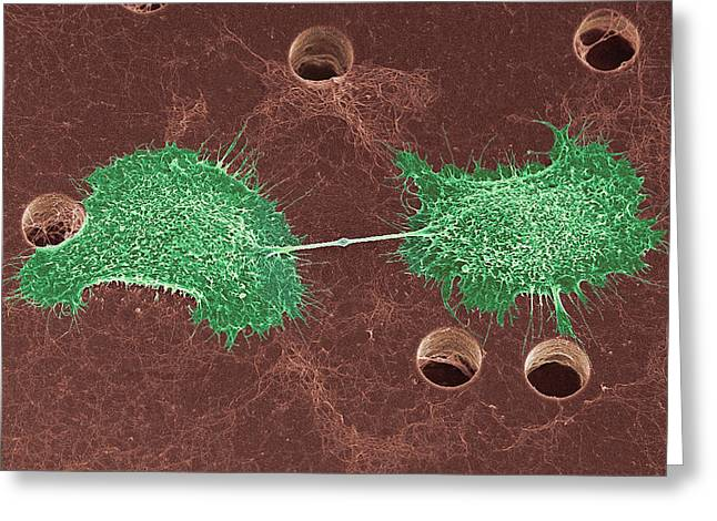 Squamous Greeting Cards - Skin Cancer Cell Dividing, Sem Greeting Card by Steve Gschmeissner