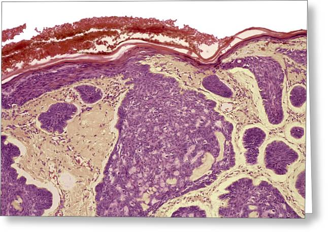 False-colour Greeting Cards - Skin Cancer, Light Micrograph Greeting Card by Steve Gschmeissner