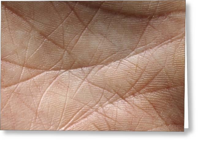 Skin Greeting Card by Mike Devlin