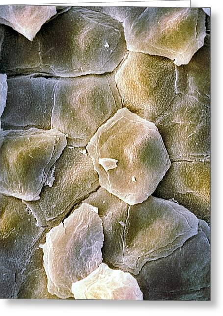 Dermatological Greeting Cards - Skin Surface, Sem Greeting Card by