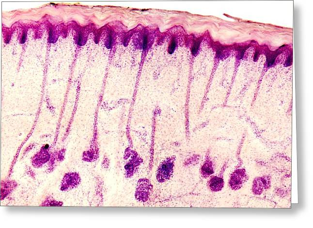 Dermatological Greeting Cards - Skin Sweat Glands, Light Micrograph Greeting Card by Dr Keith Wheeler