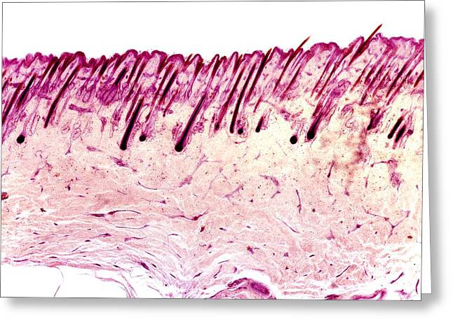 Dermatological Greeting Cards - Skin Tissue, Light Micrograph Greeting Card by Dr Keith Wheeler