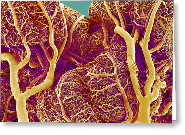 Duodenum Greeting Cards - Small Intestine Blood Vessels, Sem Greeting Card by Susumu Nishinaga