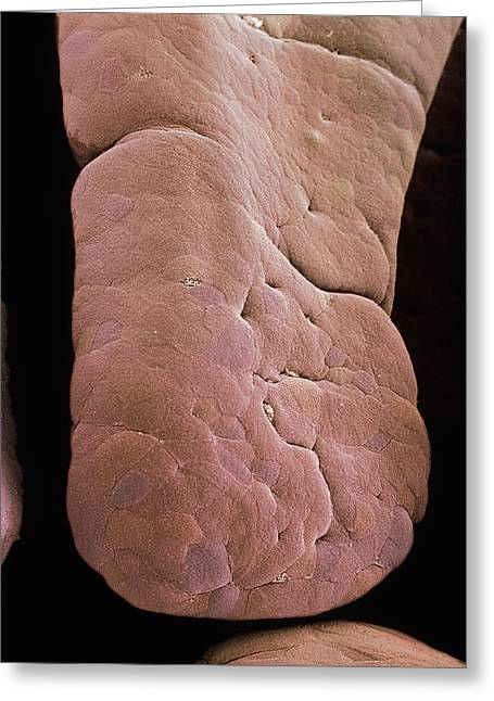Intestinal Greeting Cards - Small Intestine Villus, Sem Greeting Card by Steve Gschmeissner
