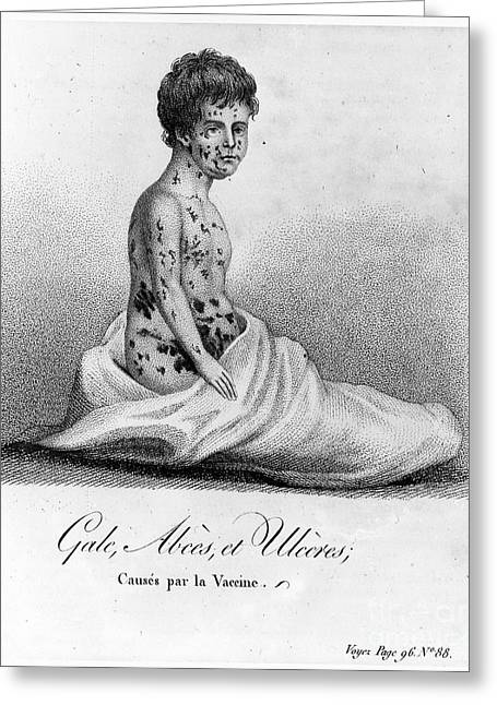Vaccination Greeting Cards - Smallpox Vaccination, 1807 Greeting Card by Granger