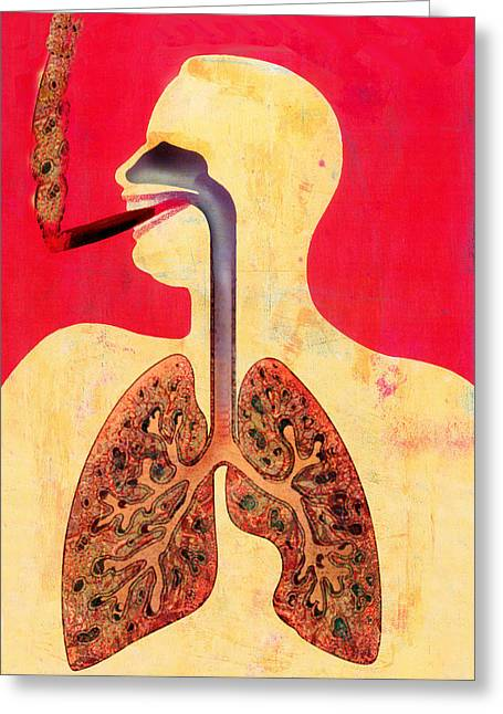 Disease-causing Greeting Cards - Smoking And Lungs Greeting Card by Hans-ulrich Osterwalder