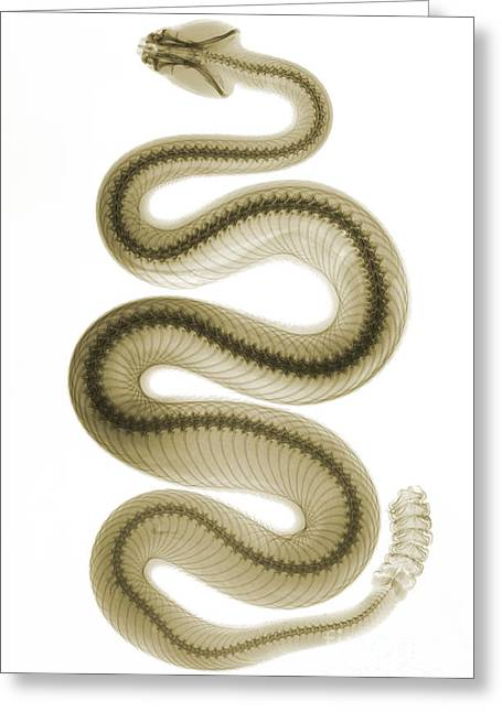 Color Enhanced Greeting Cards - Southern Pacific Rattlesnake, X-ray Greeting Card by Ted Kinsman