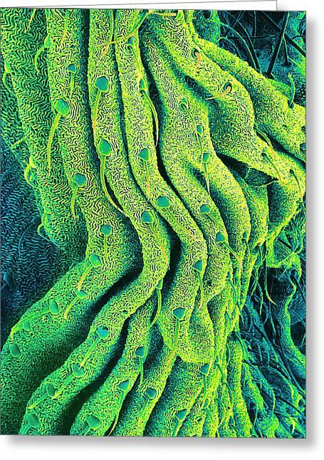 Invertebrates Greeting Cards - Spiders Body Surface, Sem Greeting Card by Susumu Nishinaga