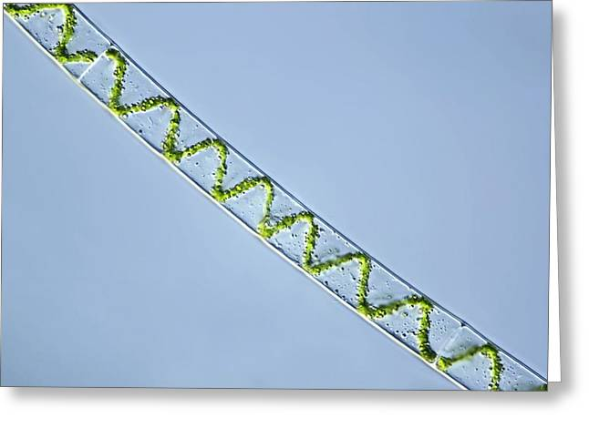 Algae Greeting Cards - Spirogyra Algae, Light Micrograph Greeting Card by Frank Fox