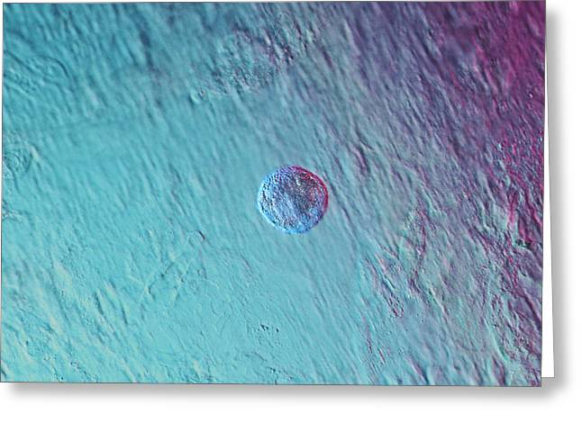 Pluripotent Greeting Cards - Stem Cell, Light Micrograph Greeting Card by Volker Steger