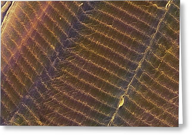 Myofibrils Greeting Cards - Striated Muscle, Sem Greeting Card by Steve Gschmeissner