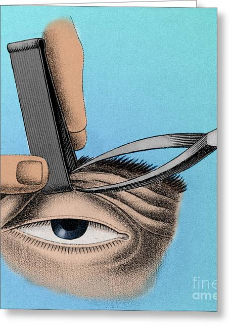 Eyelids Greeting Cards - Surgery To Correct Lazy Eyelid, 1830 Greeting Card by Photo Researchers