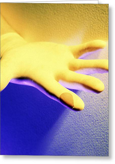 Unhygienic Greeting Cards - Surgical Glove Greeting Card by Johnny Greig