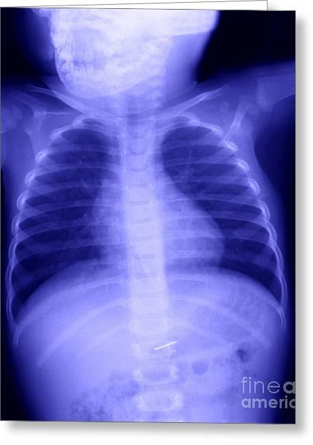 Intestinal Greeting Cards - Swallowed Nail Greeting Card by Ted Kinsman