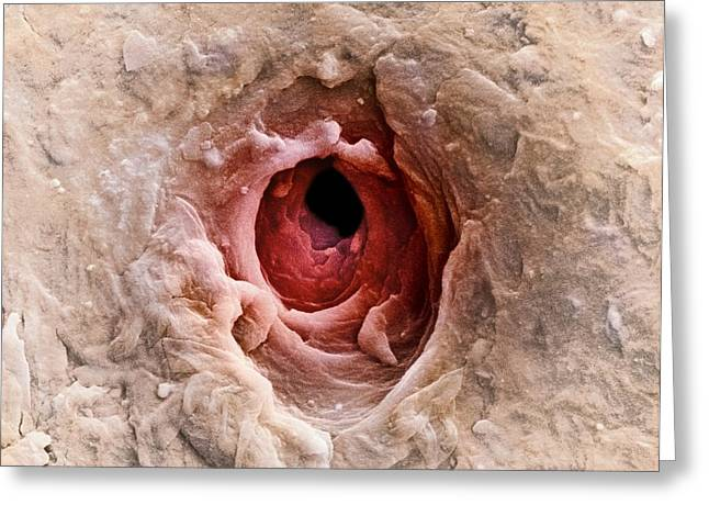 Sweat Greeting Cards - Sweat Pore, Sem Greeting Card by Dr Jeremy Burgess