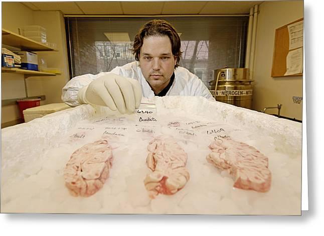 Human Brain Greeting Cards - Technician Examines Human Brain Sections Greeting Card by Volker Steger