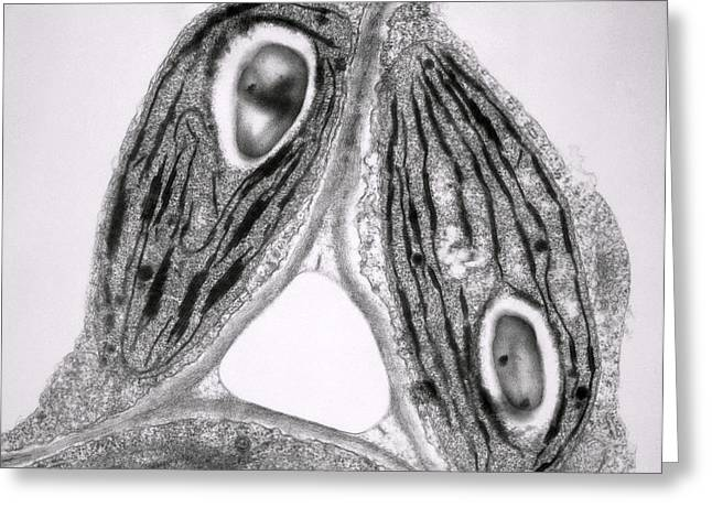 Tem Of Chloroplasts Greeting Card by Dr Jeremy Burgess