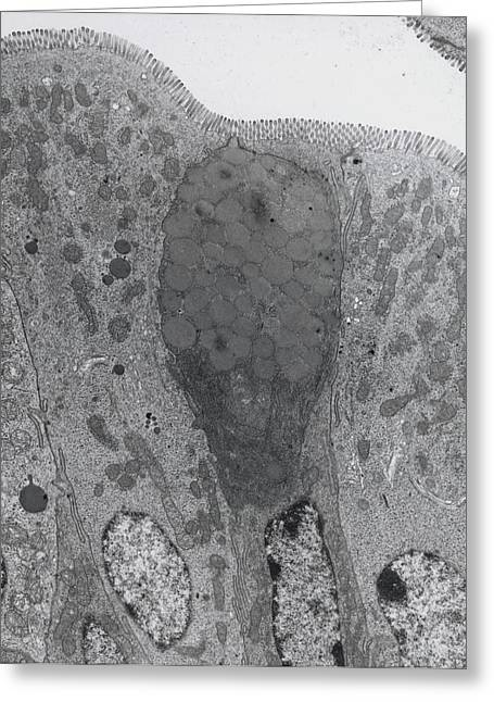 Duodenum Greeting Cards - Tem Of Goblet And Secretory Cells In Duodenum Greeting Card by Steve Gschmeissner