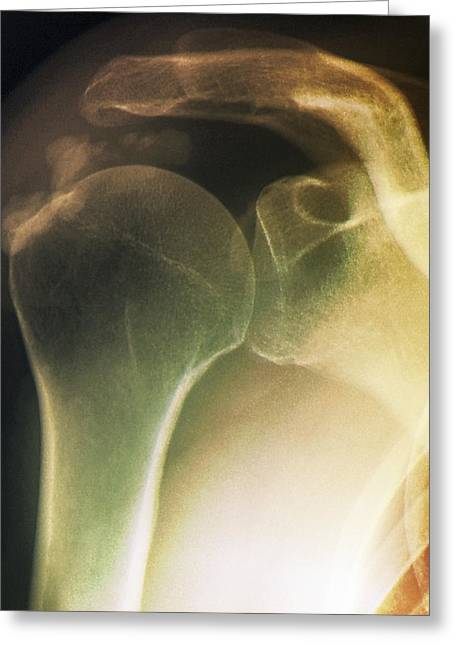 Part Of The Body Greeting Cards - Tendinitis Of The Shoulder, X-ray Greeting Card by Zephyr