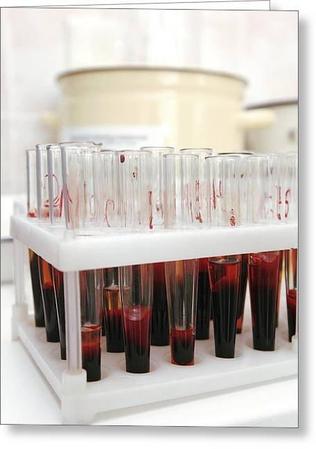 Parasitology Greeting Cards - Test Tubes In A Public Health Lab Greeting Card by Ria Novosti