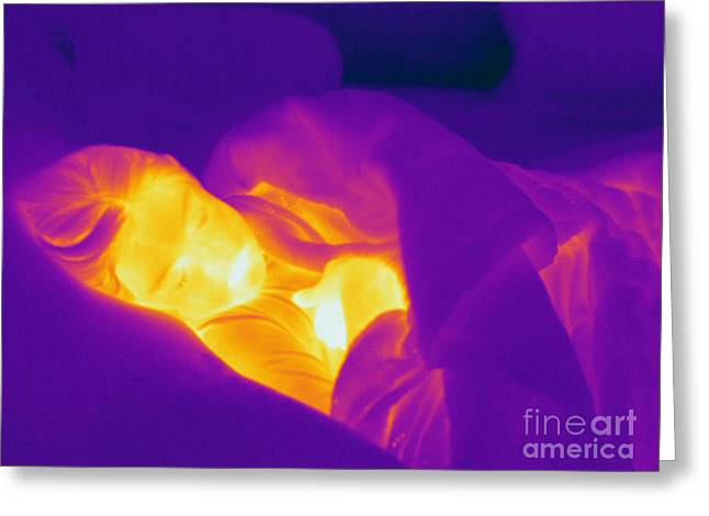 Electromagnetic Spectrum Greeting Cards - Thermogram Of A Sleeping Girl Greeting Card by Ted Kinsman