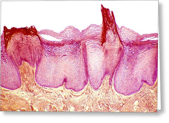 Best Sellers -  - False-colour Greeting Cards - Tongue Papillae, Light Micrograph Greeting Card by Steve Gschmeissner