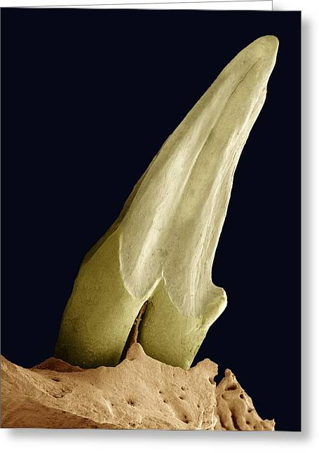 Wipe Out Greeting Cards - Tooth Fossil, Sem Greeting Card by Steve Gschmeissner