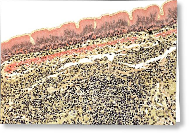 Goblet Greeting Cards - Trachea, Light Micrograph Greeting Card by Steve Gschmeissner