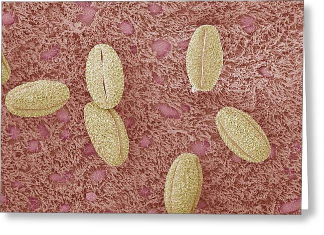 Goblet Greeting Cards - Trachea With Pollen Grains, Sem Greeting Card by Steve Gschmeissner