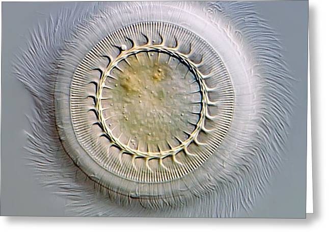 Single-celled Greeting Cards - Trichodina Parasite, Light Micrograph Greeting Card by Gerd Guenther
