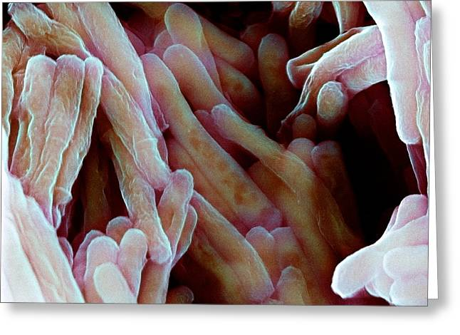 Tuberculosis Vaccine Bacteria, Sem Greeting Card by