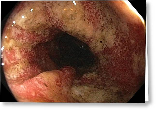 Endoscope Greeting Cards - Ulcerative Colitis In The Sigmoid Colon Greeting Card by Gastrolab