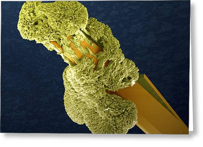 Scanning Electron Microscope Greeting Cards - Uranyl Acetate Crystals, Sem Greeting Card by Steve Gschmeissner