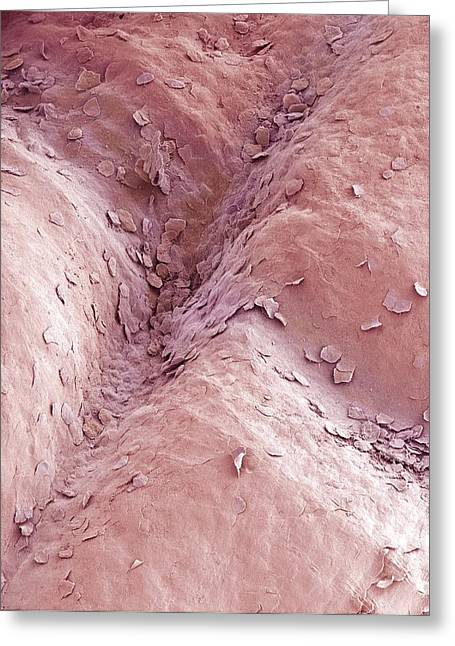 False-colour Greeting Cards - Vaginal Lining, Sem Greeting Card by Steve Gschmeissner