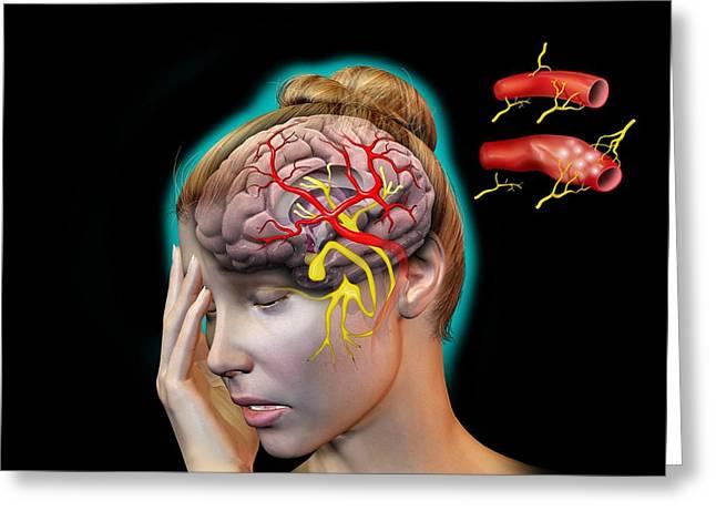 Headache Greeting Cards - Vascular Causes Of Headaches Greeting Card by Jose Antonio PeÑas