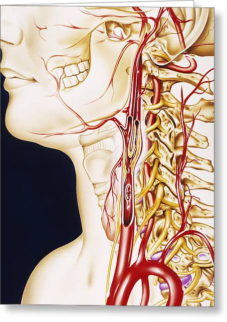 Vascular Condition Greeting Cards - Vascular Diseases Greeting Card by John Bavosi