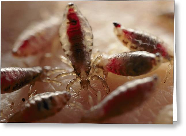 Microscopic Entities Greeting Cards - View Of Body Lice Pediculus Humanus Greeting Card by Darlyne A. Murawski